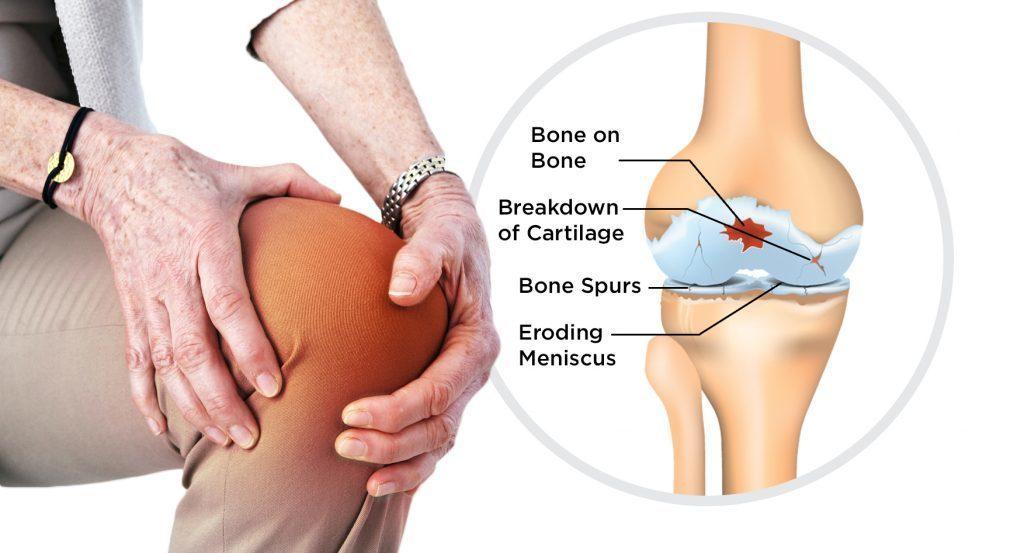 Guide to Osteoarthritis