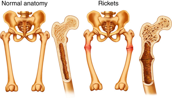 normal anatomy vs rickets