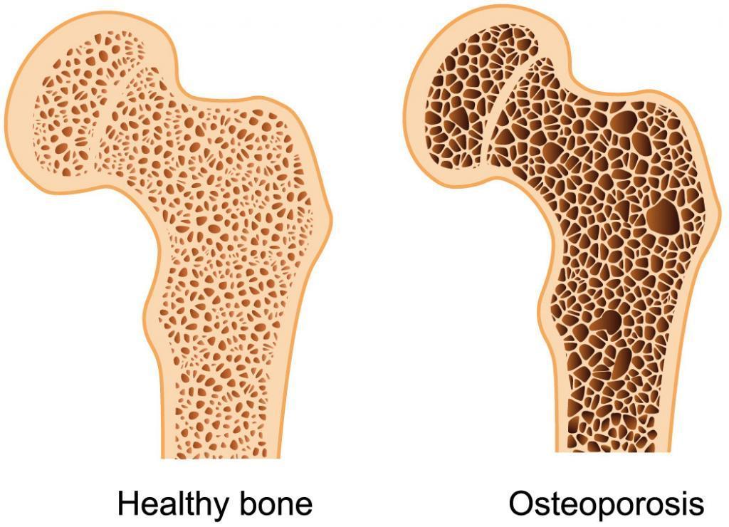healthy bone + osteoporosis
