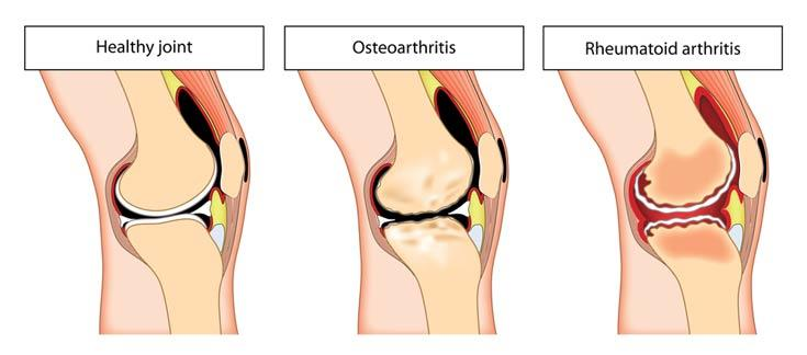 Natural Treatment For Arthritis Of The Knee