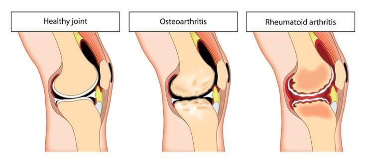 Natural Treatment For Bone On Bone Knee