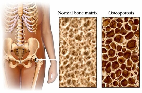 bone matrix osteoporosis
