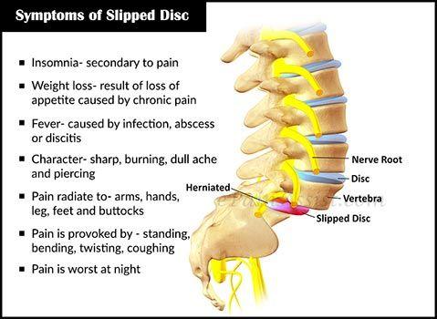 slipped disc symptoms