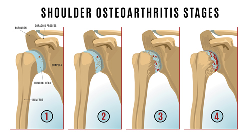 4-stages-of-osetoarthritis