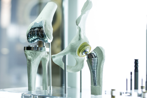 joint-replacement-implants
