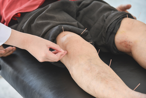 knee-pain-accupuncture