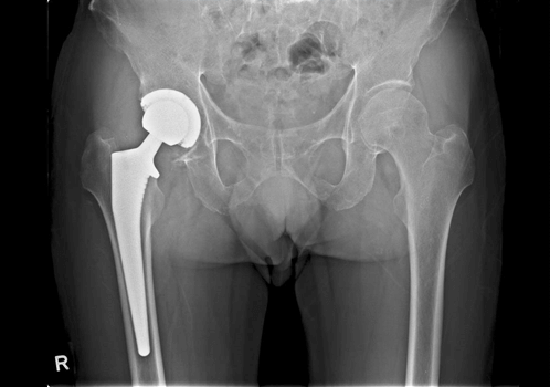 hip replacement surgery-after