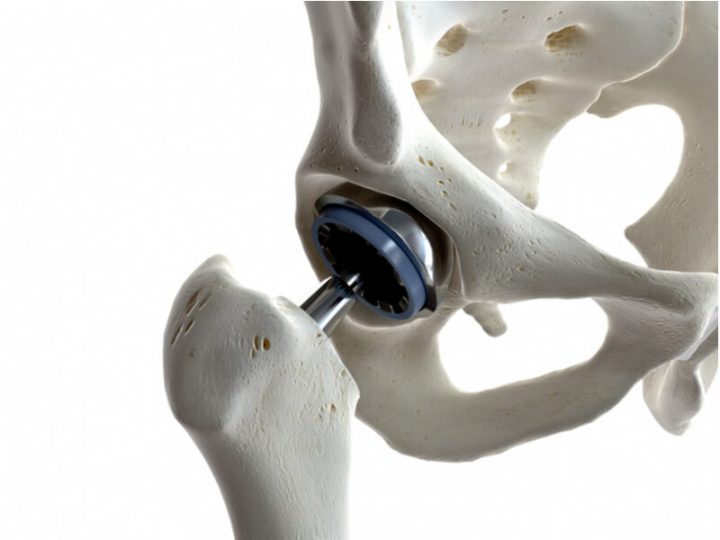 hip replacement surgery direct anterior approach