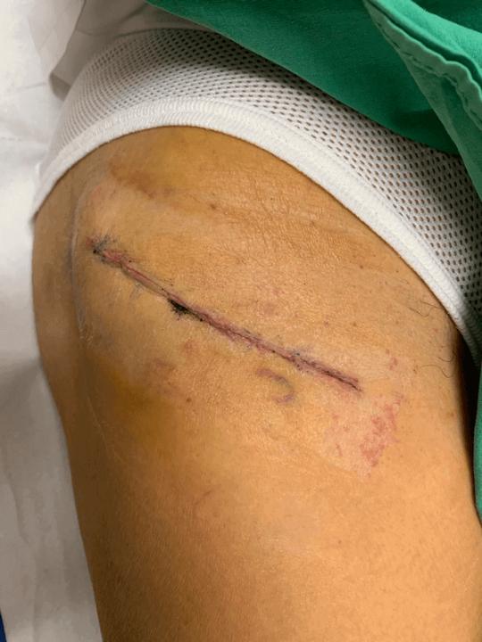 hip replacement surgery scar